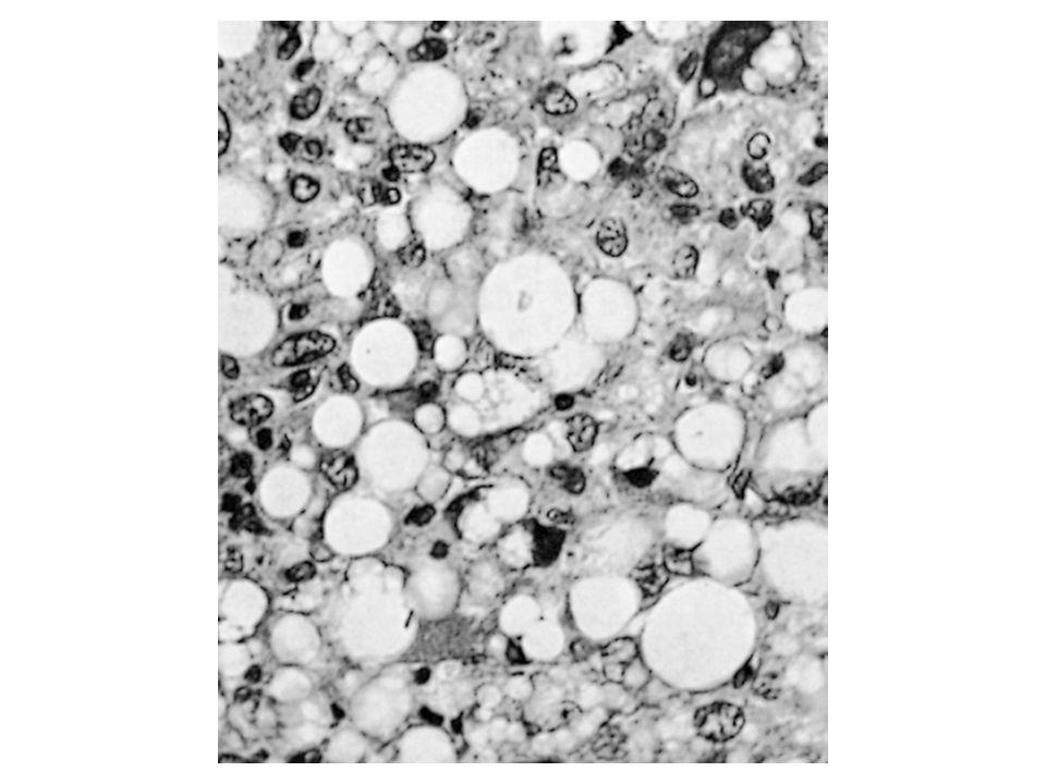 Tumori del tessuto fibroso Proliferazioni pseudosarcomatose reattive Fascite nodulare Miosite ossificante Fibromatosi Fibromatosi superficiale(plantari, palmari e peniene) Fibromatosi profonde (tumori desmoidi) Fibrosarcoma