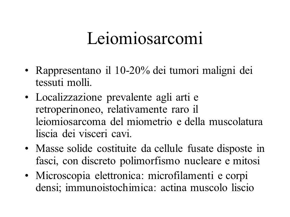 Leiomiosarcomi Rappresentano il 10-20% dei tumori maligni dei tessuti molli. Localizzazione prevalente agli arti e retroperinoneo, relativamente raro