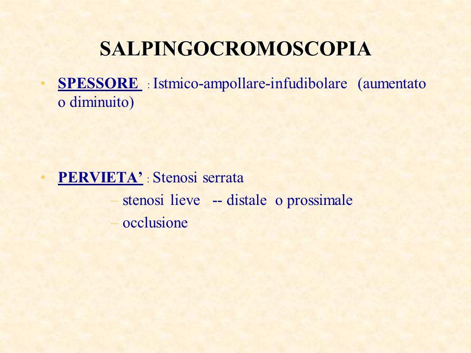 SALPINGOCROMOSCOPIA SPESSORE : Istmico-ampollare-infudibolare (aumentato o diminuito) PERVIETA' : Stenosi serrata –stenosi lieve -- distale o prossimale –occlusione