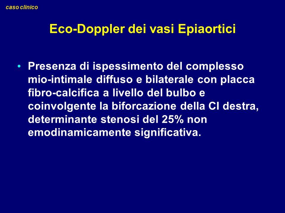 Eco-Doppler dei vasi Epiaortici Presenza di ispessimento del complesso mio-intimale diffuso e bilaterale con placca fibro-calcifica a livello del bulb