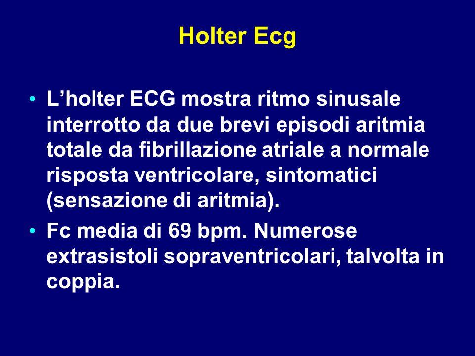 Holter Ecg L'holter ECG mostra ritmo sinusale interrotto da due brevi episodi aritmia totale da fibrillazione atriale a normale risposta ventricolare,