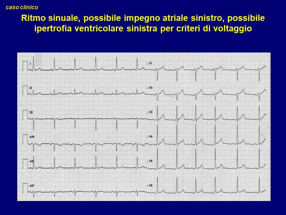 Ritmo sinuale, possibile impegno atriale sinistro, possibile ipertrofia ventricolare sinistra per criteri di voltaggio caso clinico