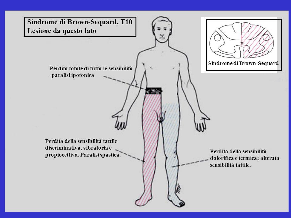 Sindrome di Brown-Sequard, T10 Lesione da questo lato Perdita totale di tutta le sensibilità -paralisi ipotonica Sindrome di Brown-Sequard Perdita del