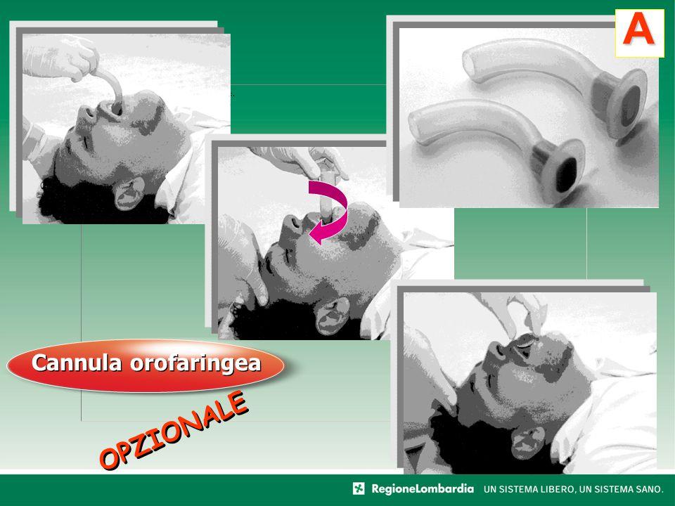 OPZIONALE A Cannula orofaringea