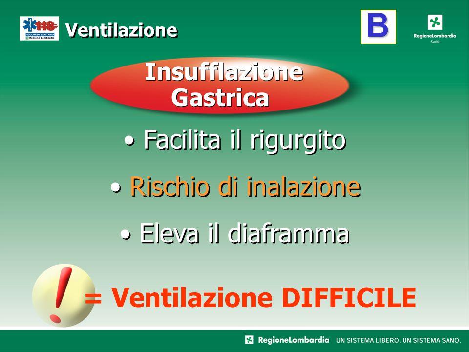 B Ventilazione Facilita il rigurgito Rischio di inalazione Eleva il diaframma Facilita il rigurgito Rischio di inalazione Eleva il diaframma = Ventila