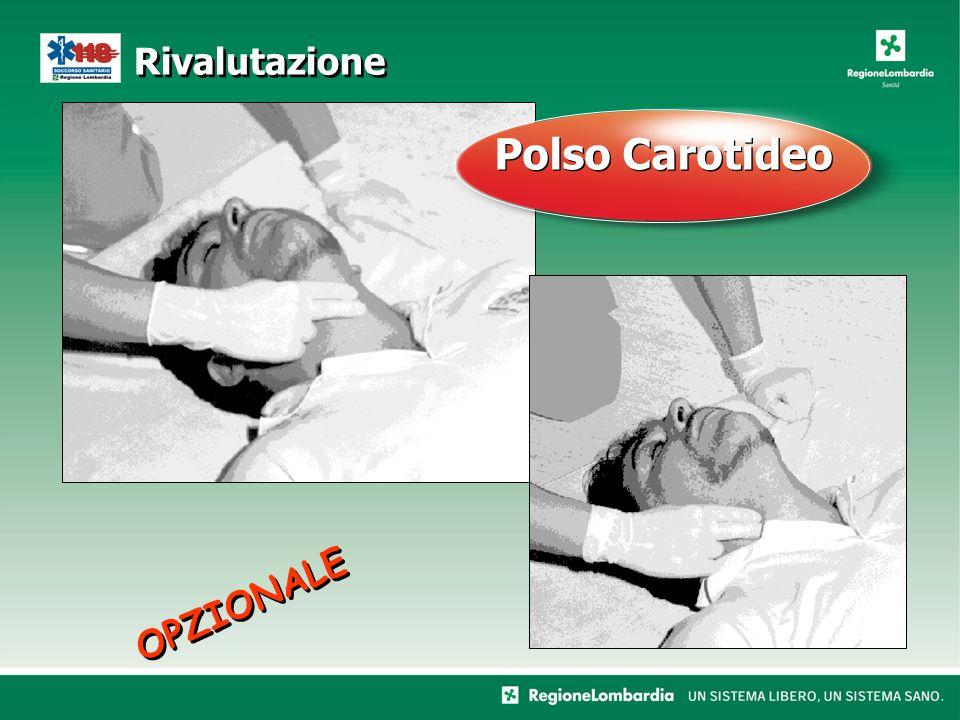Rivalutazione OPZIONALE Polso Carotideo