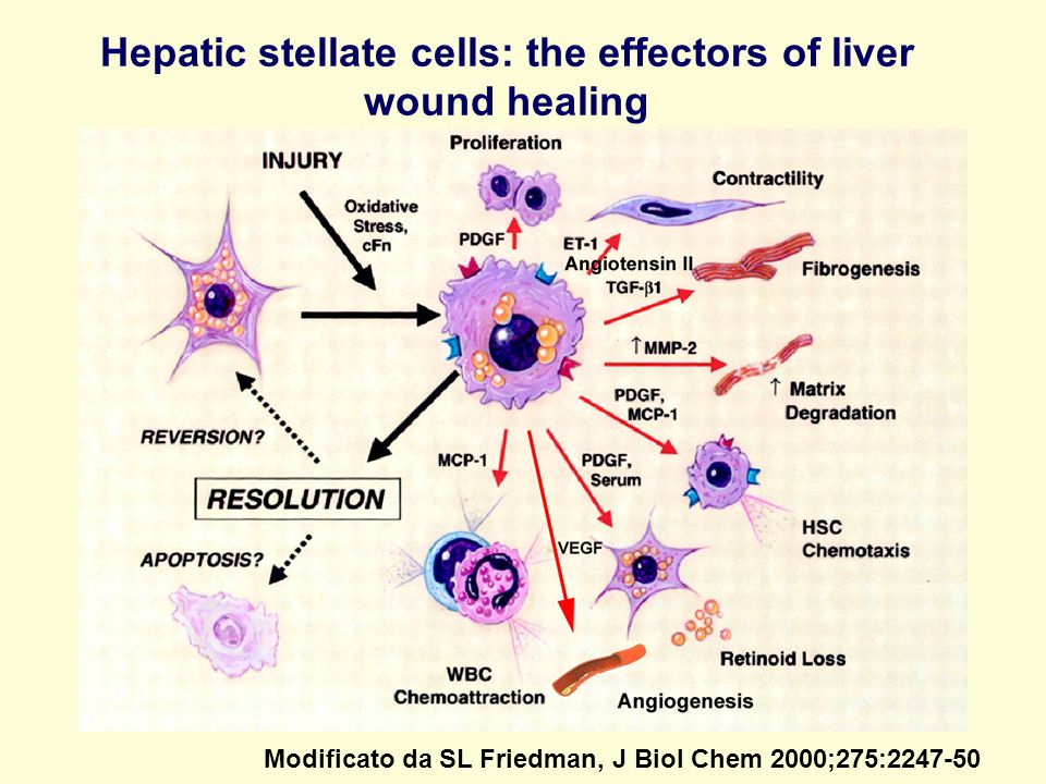 Modificato da SL Friedman, J Biol Chem 2000;275:2247-50 Hepatic stellate cells: the effectors of liver wound healing