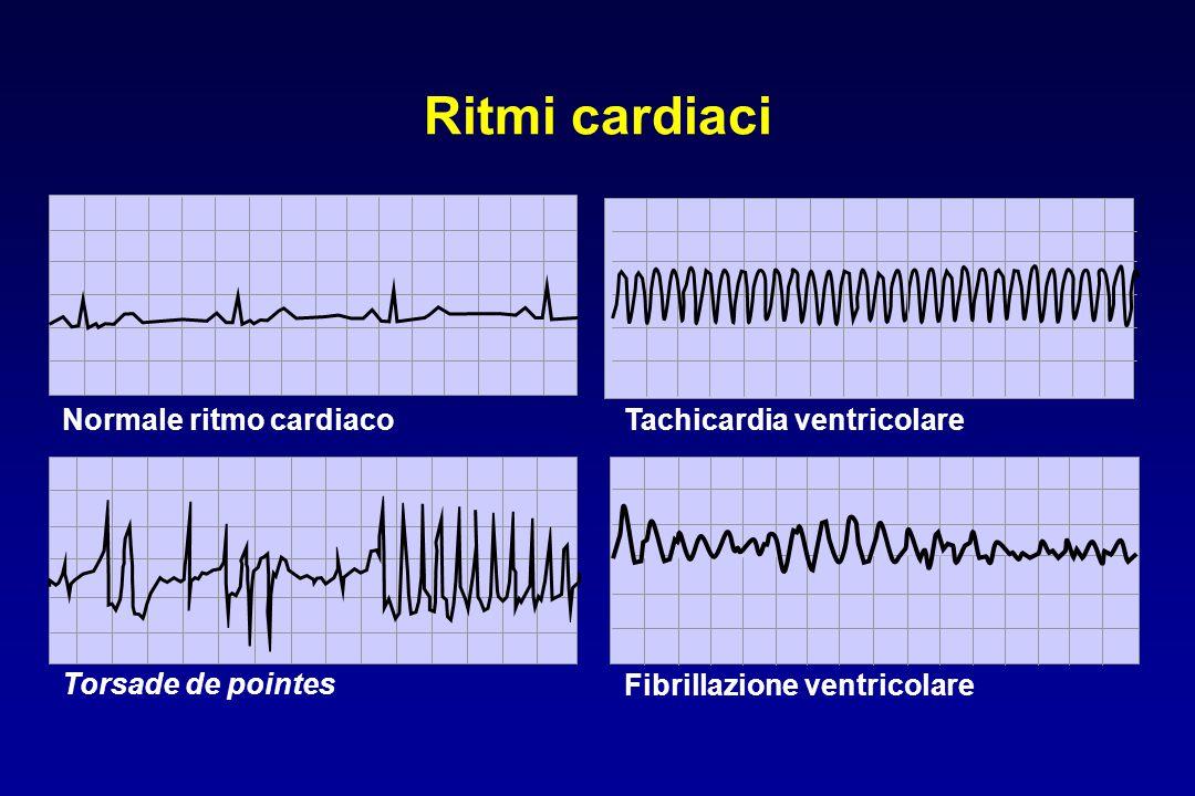 Ritmi cardiaci Torsade de pointes Fibrillazione ventricolare Normale ritmo cardiacoTachicardia ventricolare