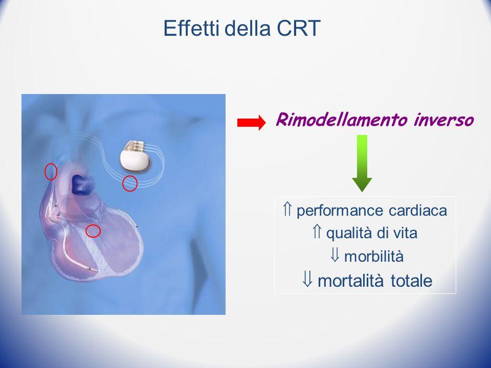  performance cardiaca  qualità di vita  morbilità  mortalità totale Rimodellamento inverso Effetti della CRT