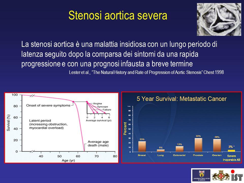 Stenosi aortica severa La stenosi aortica è una malattia insidiosa con un lungo periodo di latenza seguito dopo la comparsa dei sintomi da una rapida