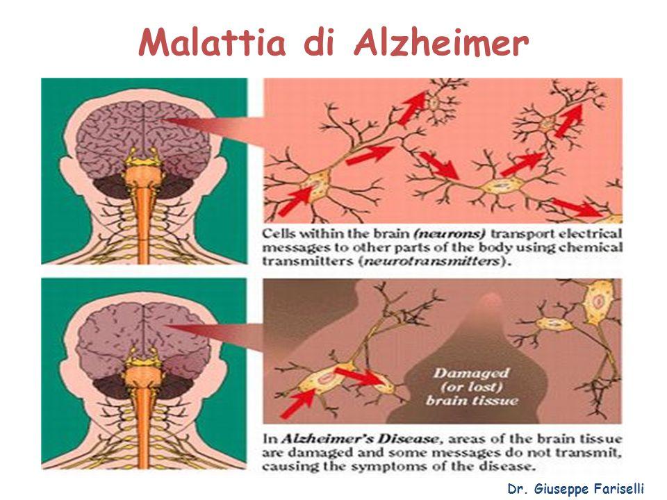 Malattia di Alzheimer Dr. Giuseppe Fariselli