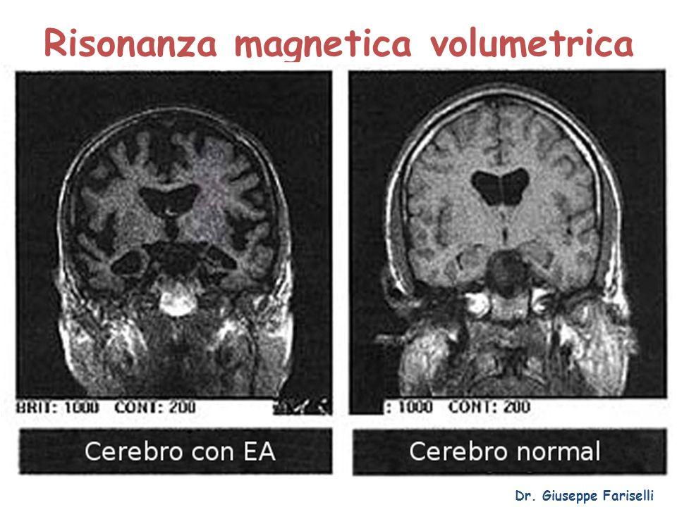Risonanza magnetica volumetrica Dr. Giuseppe Fariselli