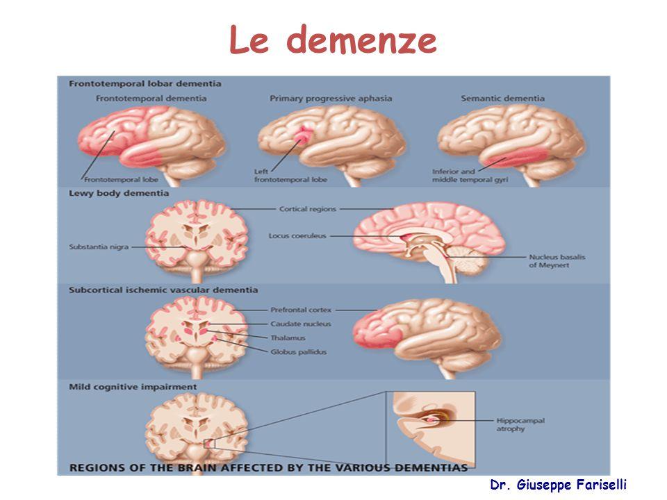 Le demenze Dr. Giuseppe Fariselli