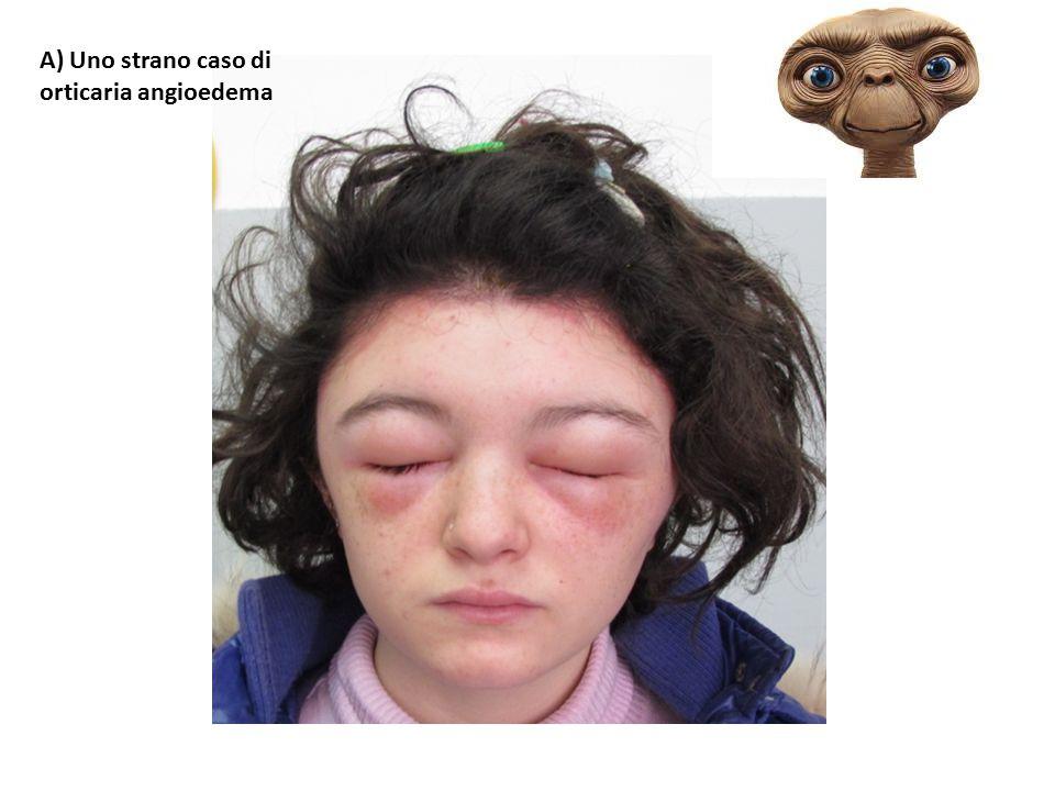 A) Uno strano caso di orticaria angioedema