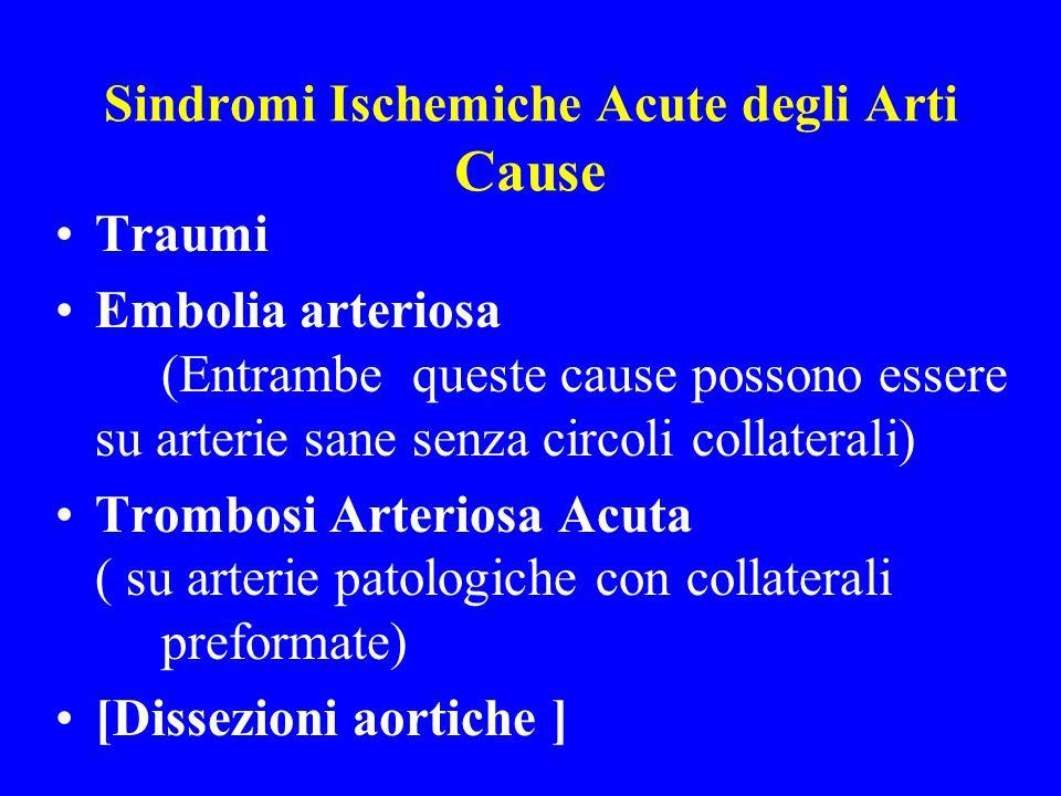 Sindromi Ischemiche Acute degli Arti Cause Traumi Embolia arteriosa (Entrambe queste cause possono essere su arterie sane senza circoli collaterali) T