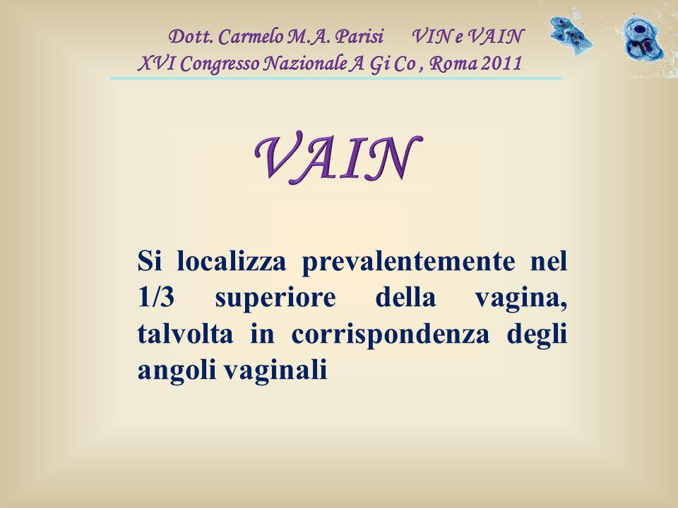 Si localizza prevalentemente nel 1/3 superiore della vagina, talvolta in corrispondenza degli angoli vaginali