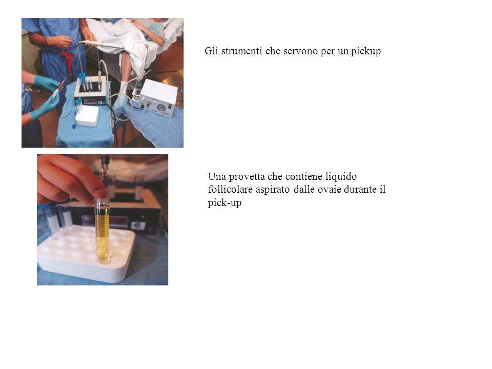 Gli strumenti che servono per un pickup Una provetta che contiene liquido follicolare aspirato dalle ovaie durante il pick-up