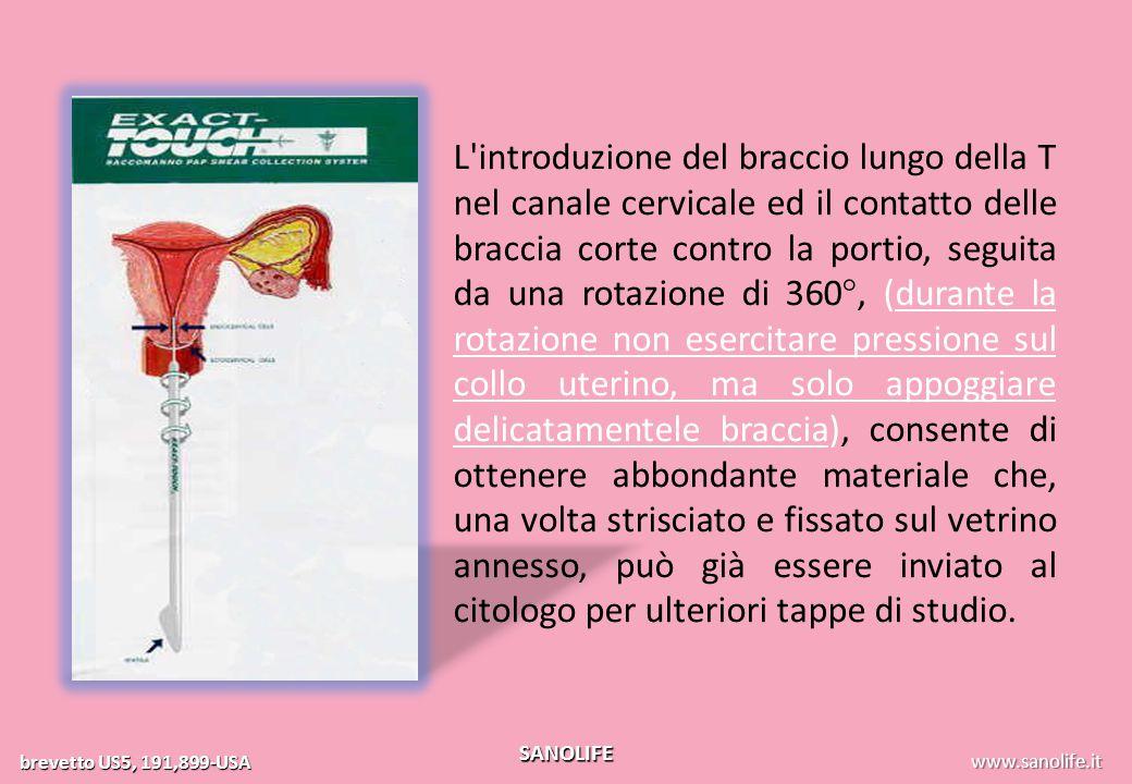 www.exact-touch.it brevetto US5, 191,899-USA SANOLIFE L'introduzione del braccio lungo della T nel canale cervicale ed il contatto delle braccia corte