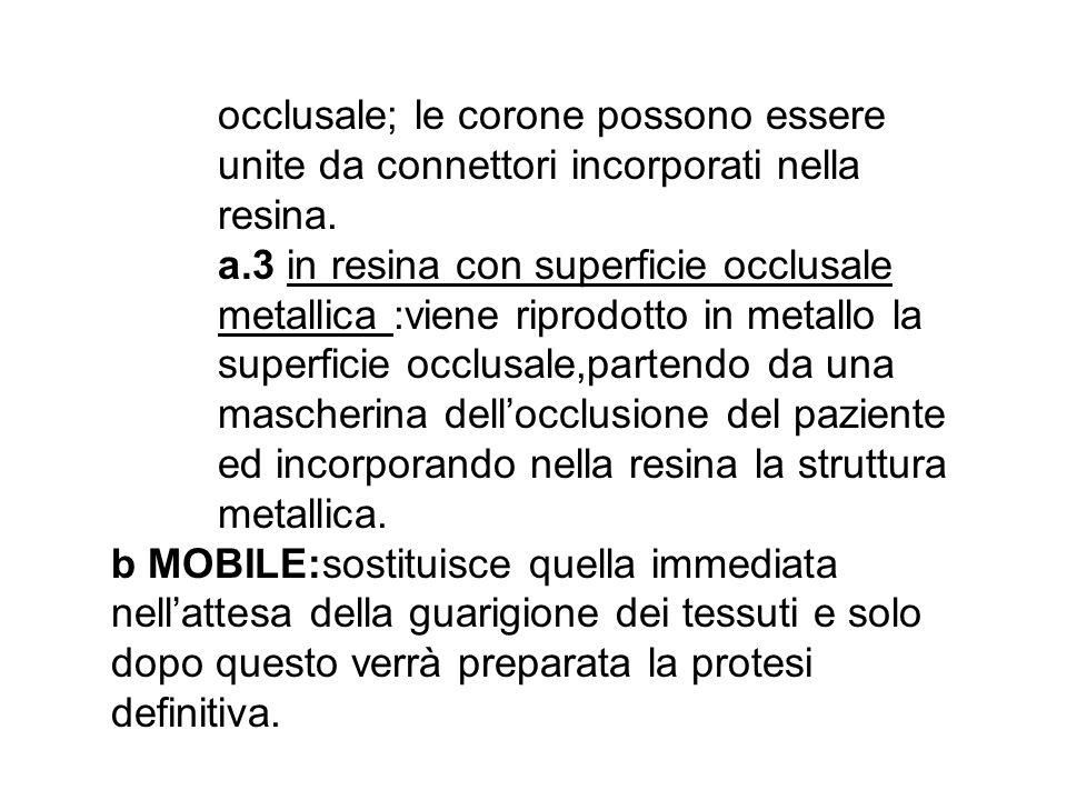 occlusale; le corone possono essere unite da connettori incorporati nella resina. a.3 in resina con superficie occlusale metallica :viene riprodotto i