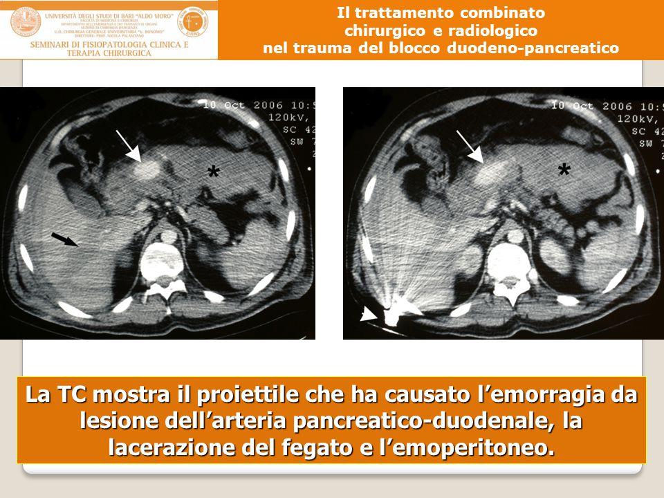 La TC mostra il proiettile che ha causato l'emorragia da lesione dell'arteria pancreatico-duodenale, la lacerazione del fegato e l'emoperitoneo. Il tr