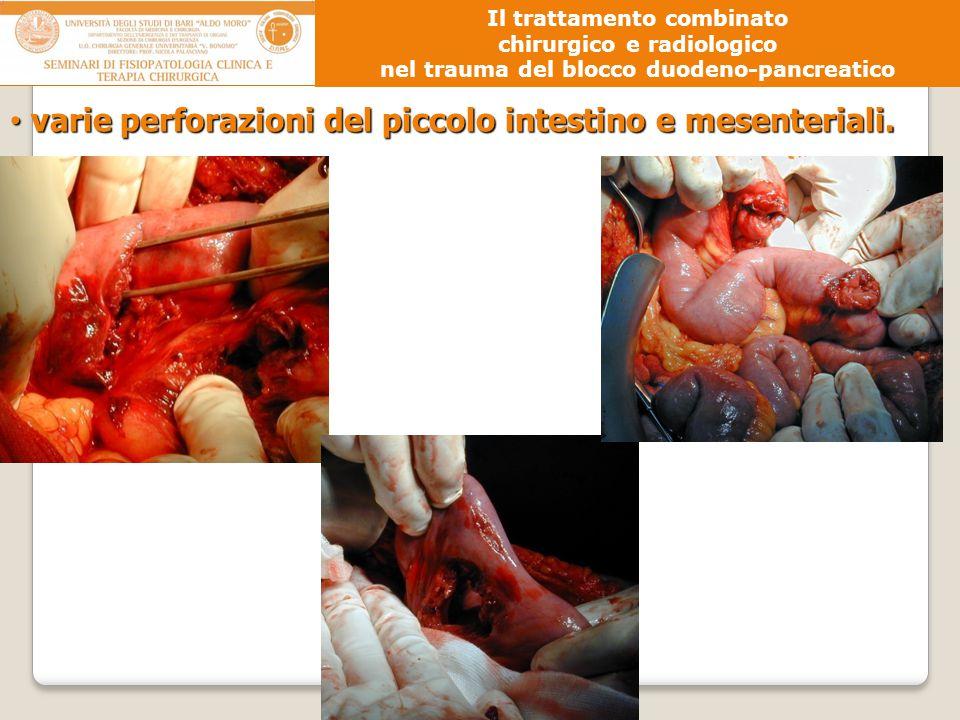 varie perforazioni del piccolo intestino e mesenteriali. varie perforazioni del piccolo intestino e mesenteriali. Il trattamento combinato chirurgico