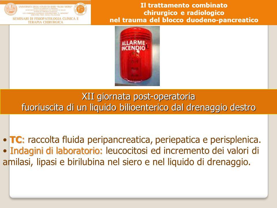 XII giornata post-operatoria fuoriuscita di un liquido bilioenterico dal drenaggio destro TC: TC: raccolta fluida peripancreatica, periepatica e peris