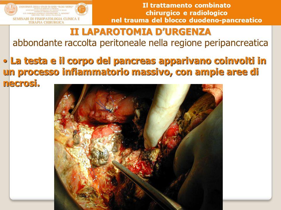 II LAPAROTOMIA D'URGENZA abbondante raccolta peritoneale nella regione peripancreatica La testa e il corpo del pancreas apparivano coinvolti in un pro