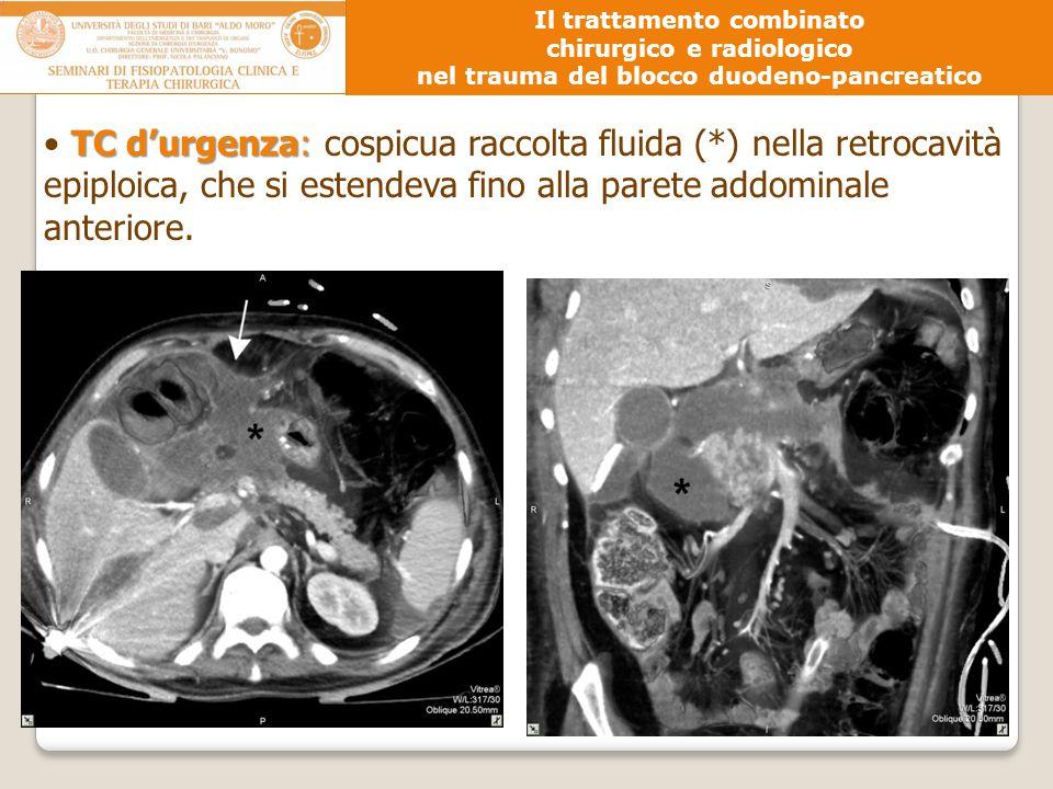 TC d'urgenza: TC d'urgenza: cospicua raccolta fluida (*) nella retrocavità epiploica, che si estendeva fino alla parete addominale anteriore. Il tratt