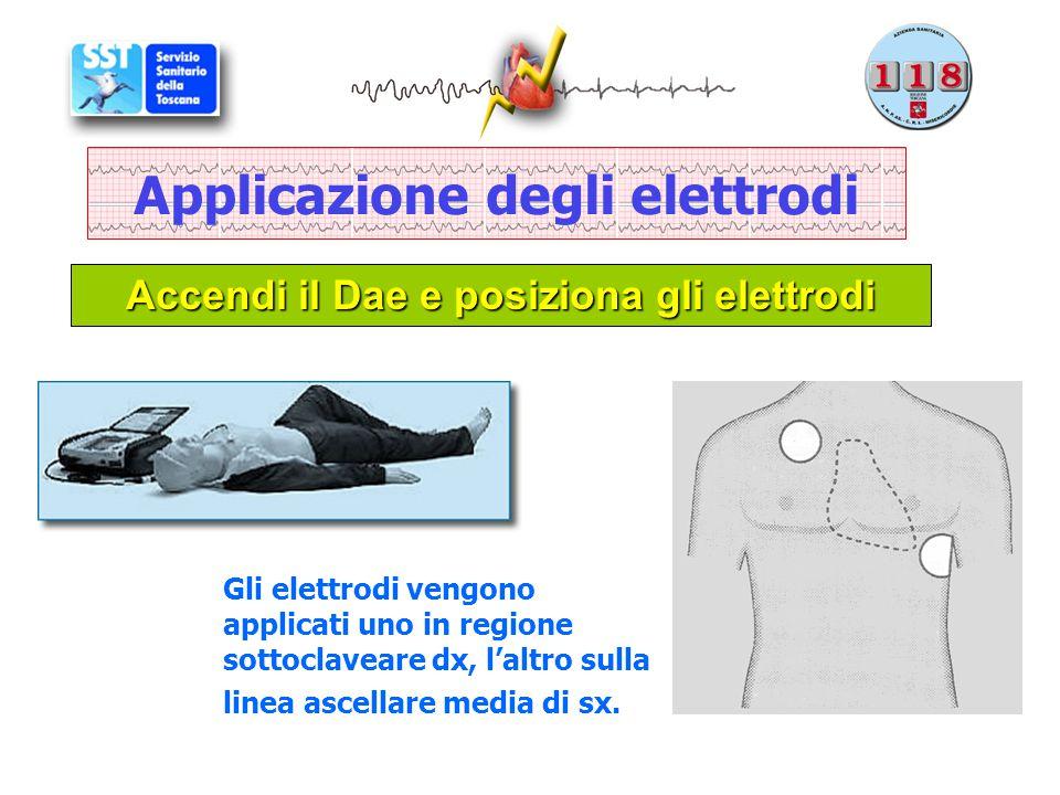 Applicazione degli elettrodi Accendi il Dae e posiziona gli elettrodi Gli elettrodi vengono applicati uno in regione sottoclaveare dx, l'altro sulla l