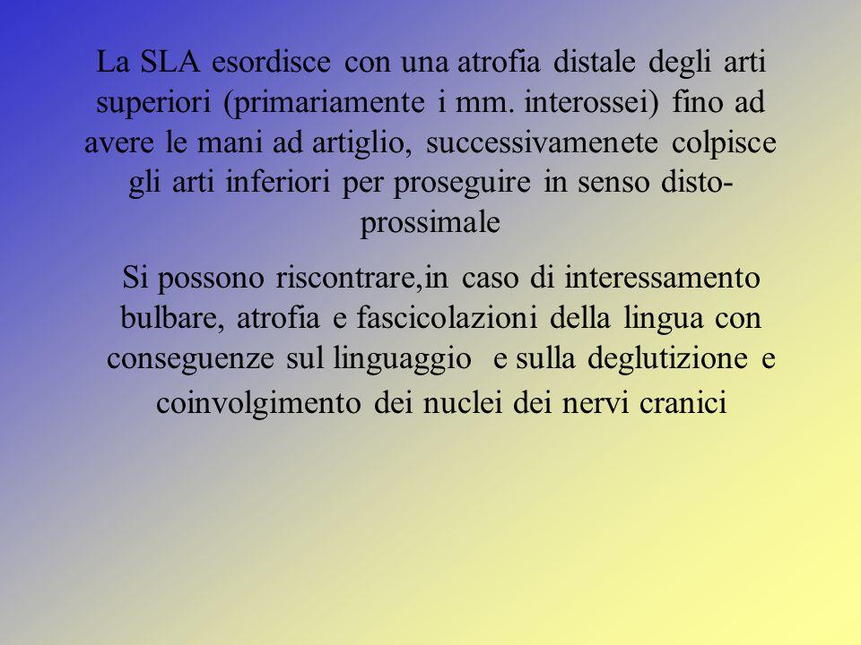 La SLA esordisce con una atrofia distale degli arti superiori (primariamente i mm.