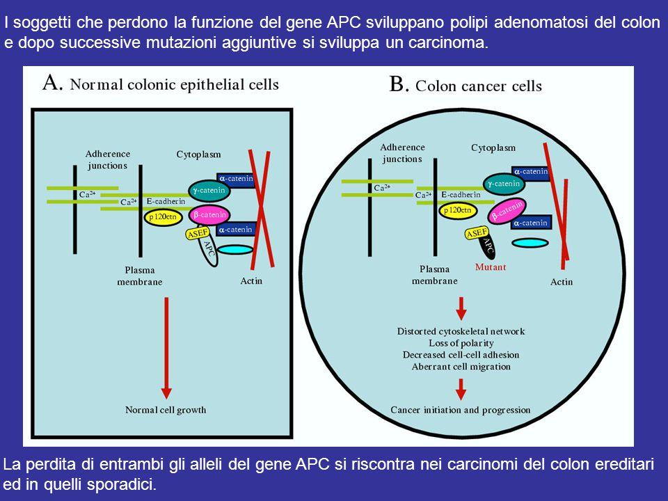La perdita di entrambi gli alleli del gene APC si riscontra nei carcinomi del colon ereditari ed in quelli sporadici.