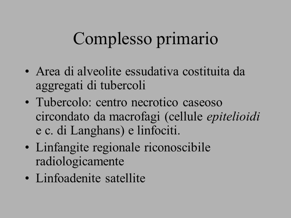 Complesso primario Area di alveolite essudativa costituita da aggregati di tubercoli Tubercolo: centro necrotico caseoso circondato da macrofagi (cell