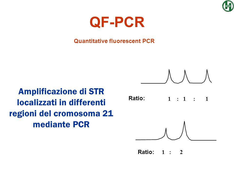 QF-PCR Quantitative fluorescent PCR Ratio: 1 : 1 : 1 Amplificazione di STR localizzati in differenti regioni del cromosoma 21 mediante PCR Ratio: 1 :