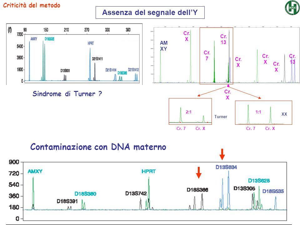 Criticità del metodo Sindrome di Turner ? Contaminazione con DNA materno AM XY Cr. X Cr. 7 Cr. 13 Cr. X Cr. 13 Cr. X Cr. 7 2:1 Turner Cr. XCr. 7 1:1 X