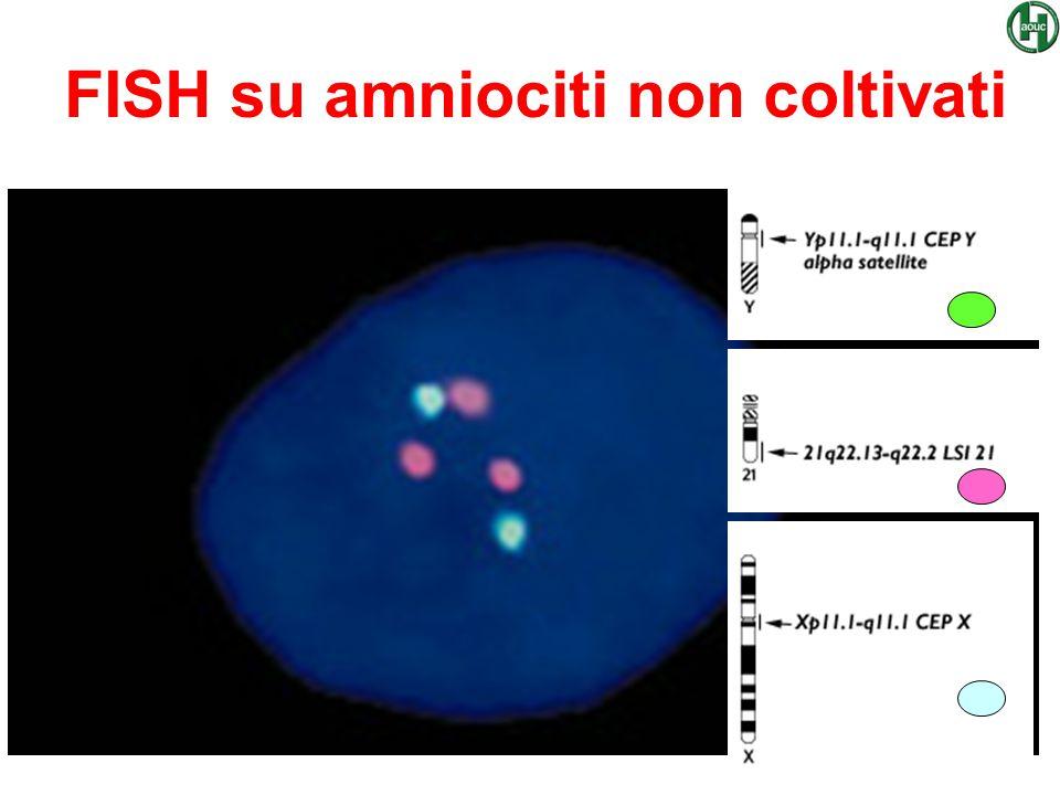 FISH su amniociti non coltivati