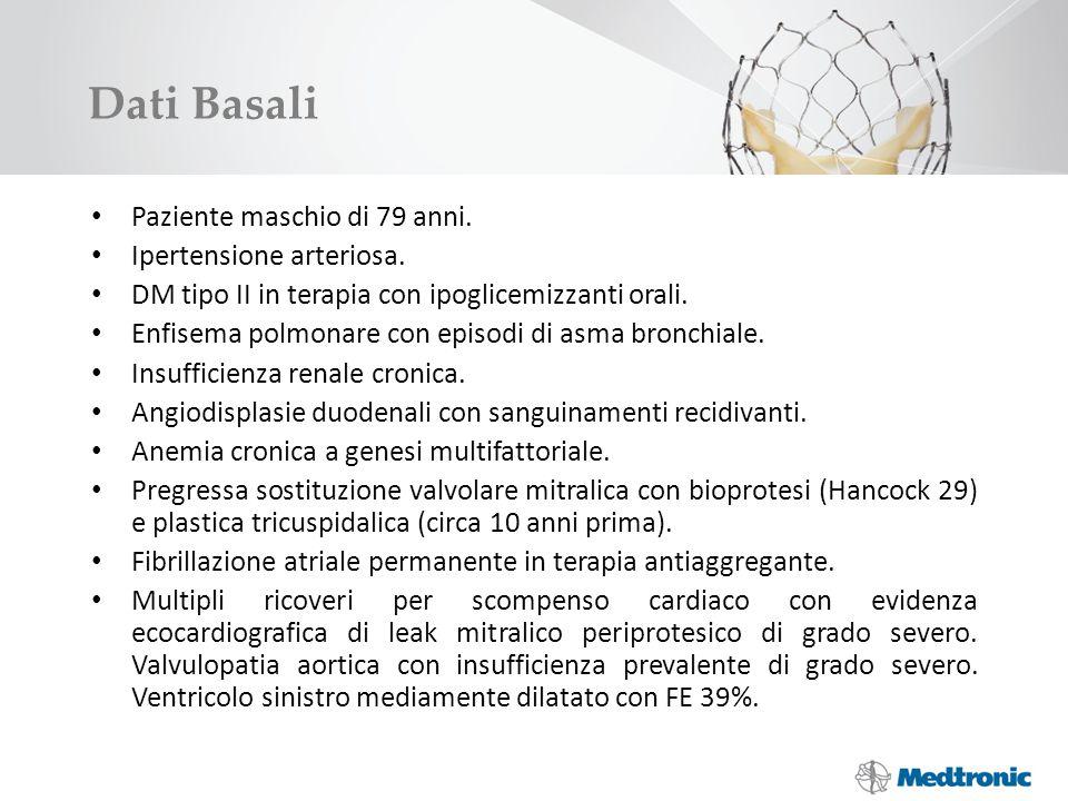 Dati Basali Paziente maschio di 79 anni. Ipertensione arteriosa. DM tipo II in terapia con ipoglicemizzanti orali. Enfisema polmonare con episodi di a