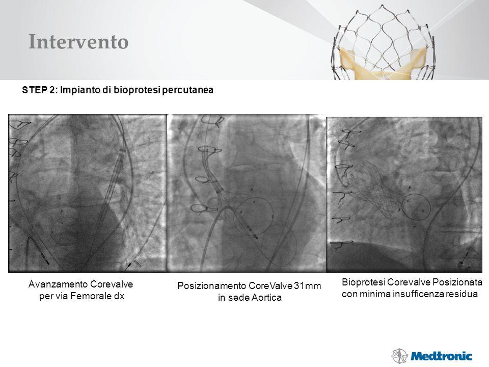 Intervento STEP 2: Impianto di bioprotesi percutanea Avanzamento Corevalve per via Femorale dx Posizionamento CoreValve 31mm in sede Aortica Bioprotes