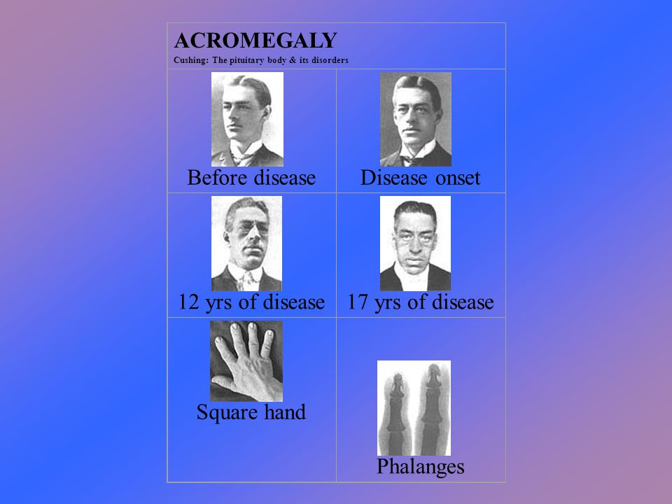 ACROMEGALY Cushing: The pituitary body & its disorders Before disease Disease onset 12 yrs of disease 17 yrs of disease Square hand Phalanges