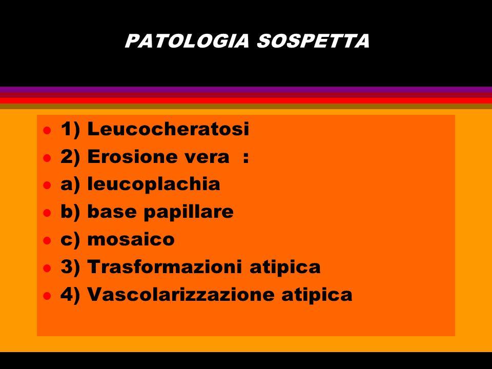 PATOLOGIA SOSPETTA l 1) Leucocheratosi l 2) Erosione vera : l a) leucoplachia l b) base papillare l c) mosaico l 3) Trasformazioni atipica l 4) Vascol
