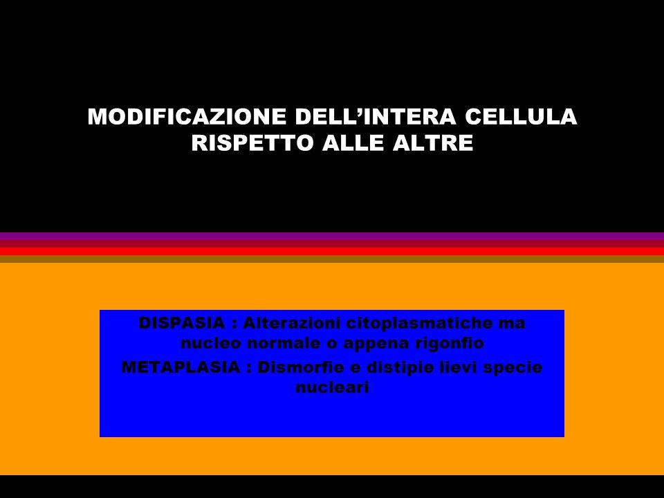 MODIFICAZIONE DELL'INTERA CELLULA RISPETTO ALLE ALTRE DISPASIA : Alterazioni citoplasmatiche ma nucleo normale o appena rigonfio METAPLASIA : Dismorfi