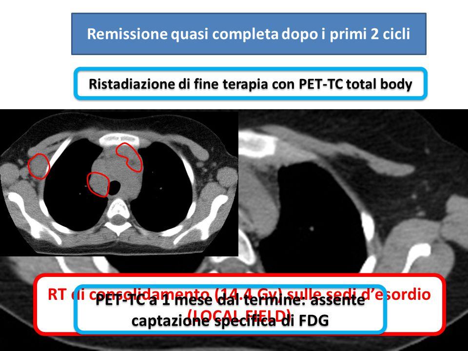Remissione quasi completa dopo i primi 2 cicli Ristadiazione di fine terapia con PET-TC total body RT di consolidamento (14.4 Gy) sulle sedi d'esordio