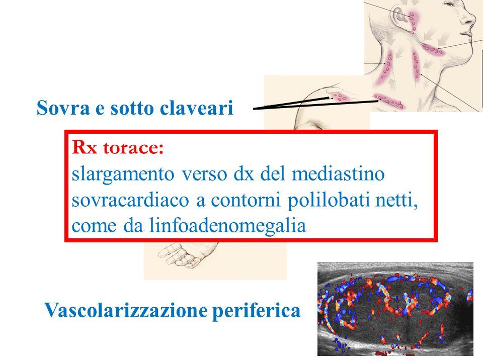 Sovra e sotto claveari Vascolarizzazione periferica Rx torace: slargamento verso dx del mediastino sovracardiaco a contorni polilobati netti, come da