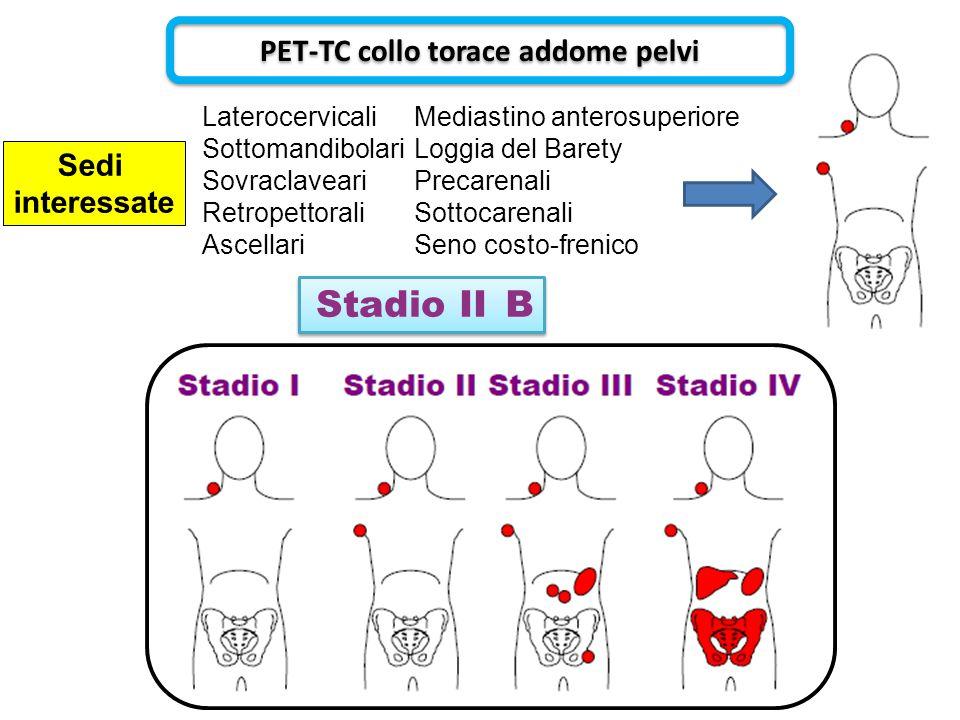 B B Stadio II PET-TC collo torace addome pelvi Sedi interessate Laterocervicali Sottomandibolari Sovraclaveari Retropettorali Ascellari Mediastino ant