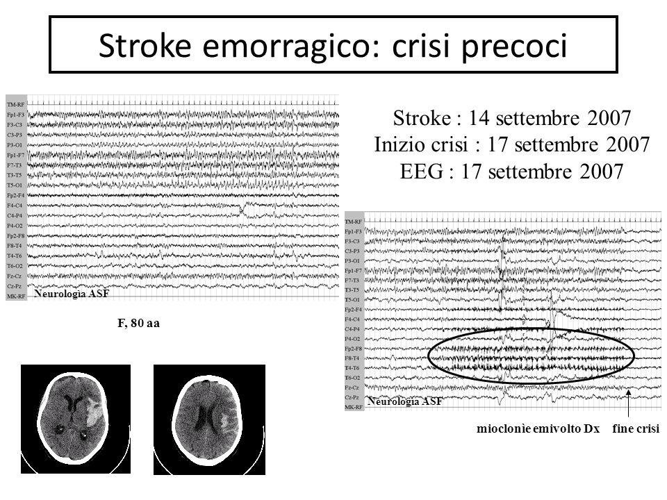 Stroke emorragico: crisi precoci mioclonìe emivolto Dxfine crisi F, 80 aa Stroke : 14 settembre 2007 Inizio crisi : 17 settembre 2007 EEG : 17 settembre 2007 Neurologìa ASF
