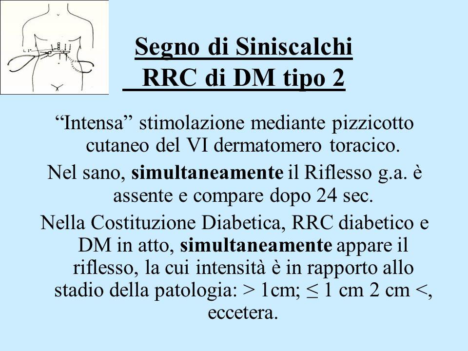 """Segno di Siniscalchi RRC di DM tipo 2 """"Intensa"""" stimolazione mediante pizzicotto cutaneo del VI dermatomero toracico. Nel sano, simultaneamente il Rif"""