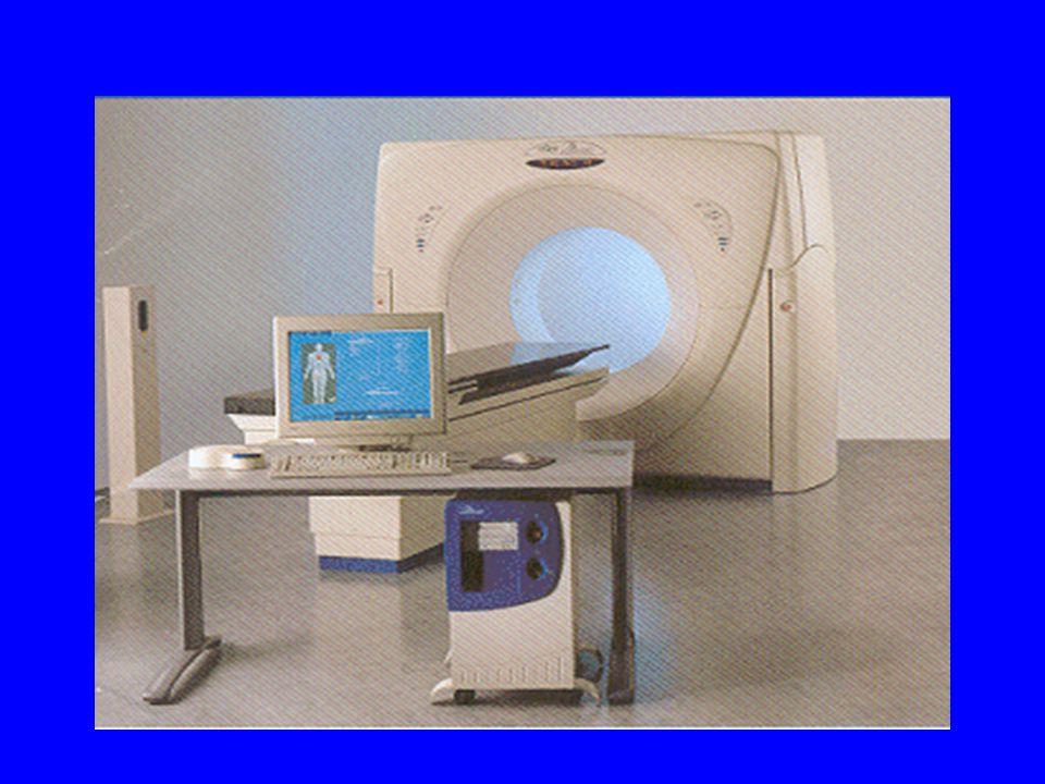 Dosi tipiche [mGy] per esami CT in adulti [Shrimpton et al.