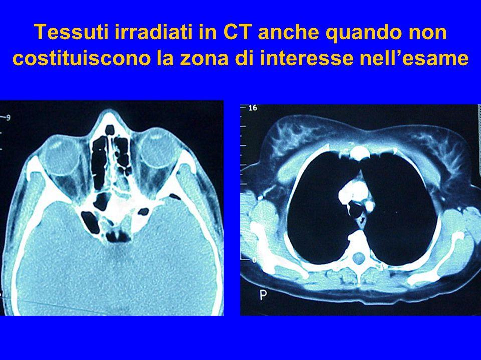 Tessuti irradiati in CT anche quando non costituiscono la zona di interesse nell'esame Lens of the eye Breast tissue