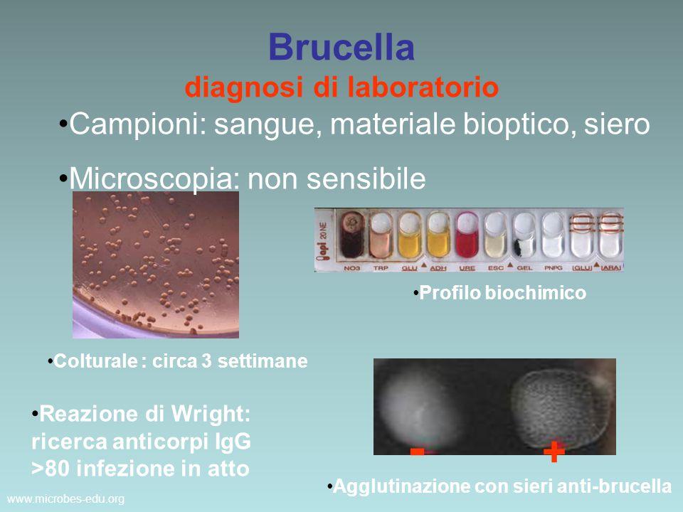 www.microbes-edu.org Brucella diagnosi di laboratorio Campioni: sangue, materiale bioptico, siero Microscopia: non sensibile Colturale : circa 3 setti