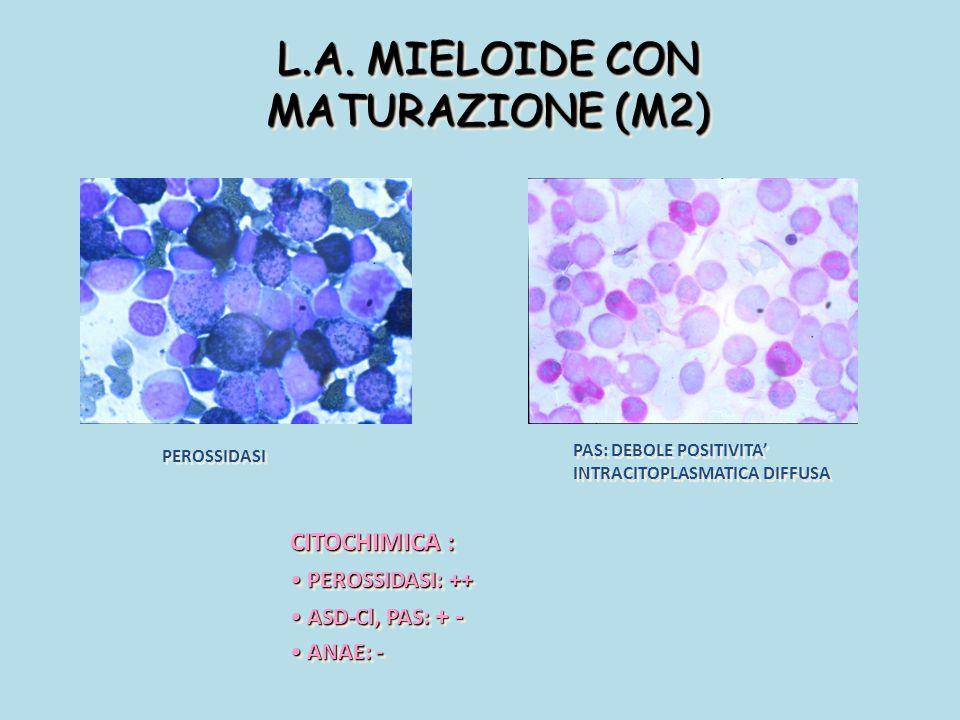 L.A. MIELOIDE CON MATURAZIONE (M2) PEROSSIDASI PAS: DEBOLE POSITIVITA' INTRACITOPLASMATICA DIFFUSA CITOCHIMICA : PEROSSIDASI: ++ PEROSSIDASI: ++ ASD-C