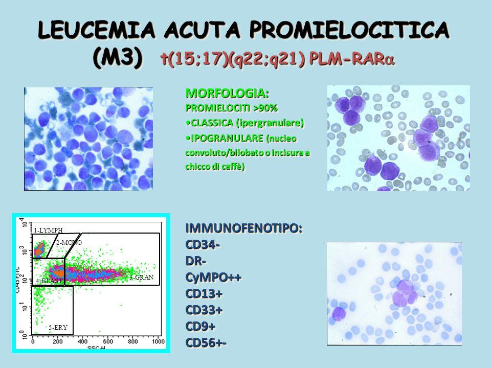 LEUCEMIA ACUTA PROMIELOCITICA (M3) t(15;17)(q22;q21) PLM-RAR  MORFOLOGIA: PROMIELOCITI >90% CLASSICA (ipergranulare)CLASSICA (ipergranulare) IPOGRANU